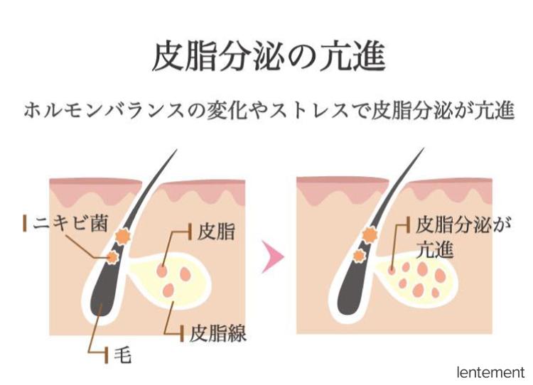 皮脂分泌の亢進イメージ図