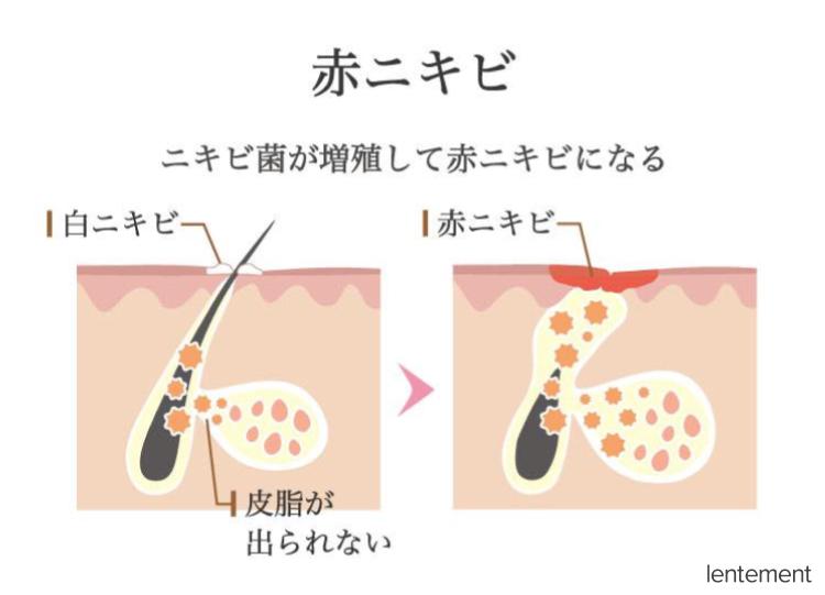 赤ニキビの解説図